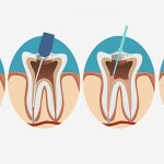 The Relationship Between Root Canals and Cancer